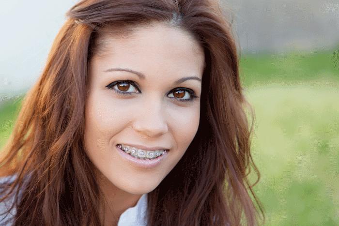 adult braces paramusj Braces New Hamburg Dental Group