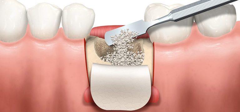 bone graft for dental implant nobel biocare 768x360 1 Bone Grafting New Hamburg Dental Group