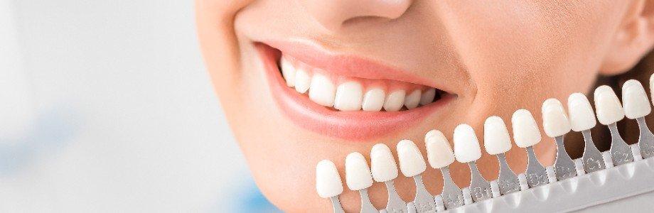 cosmetic dental services cliniva dental 1 New Hamburg Dental Group