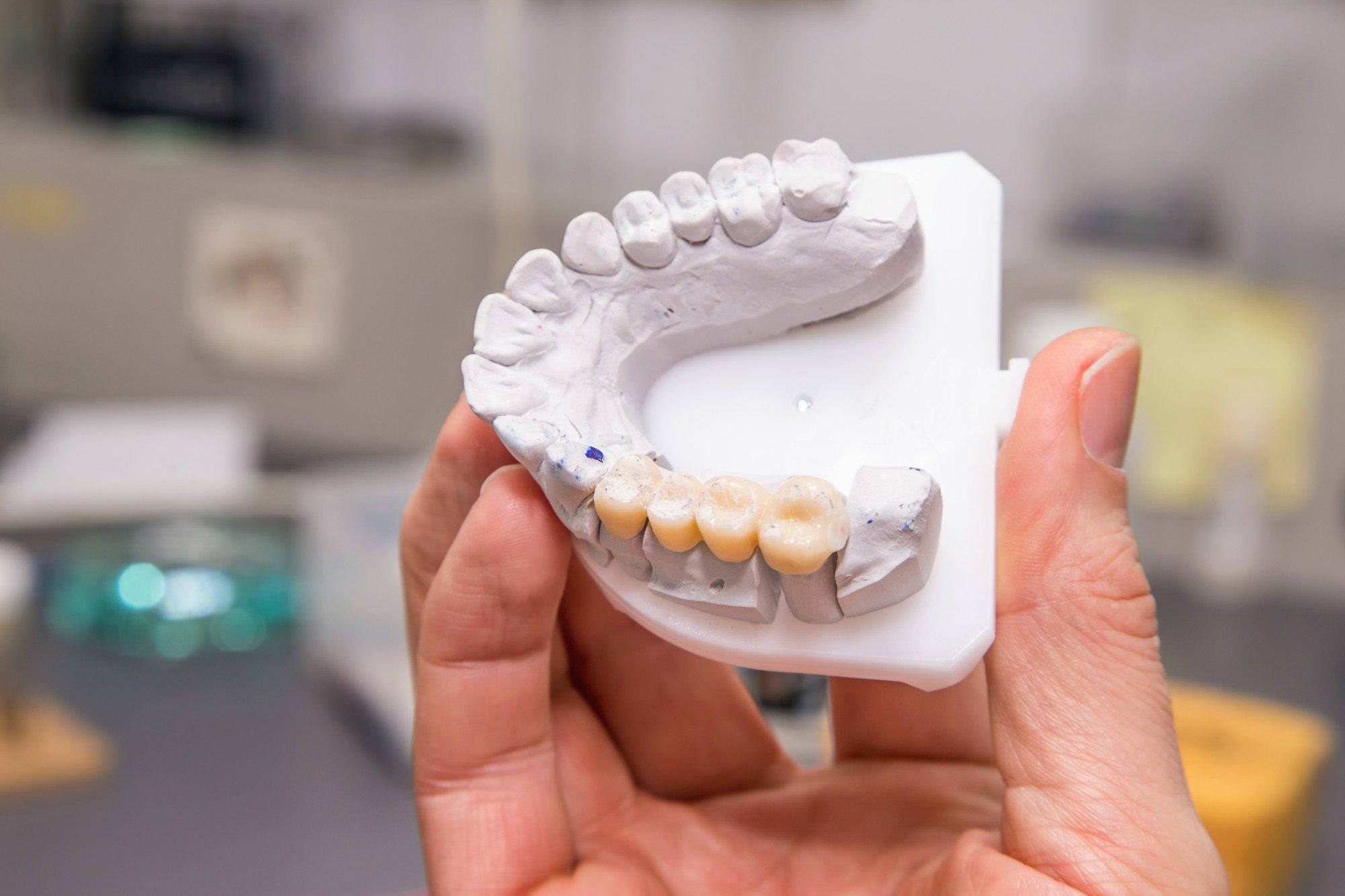 dental bridges Dental Bridges New Hamburg Dental Group