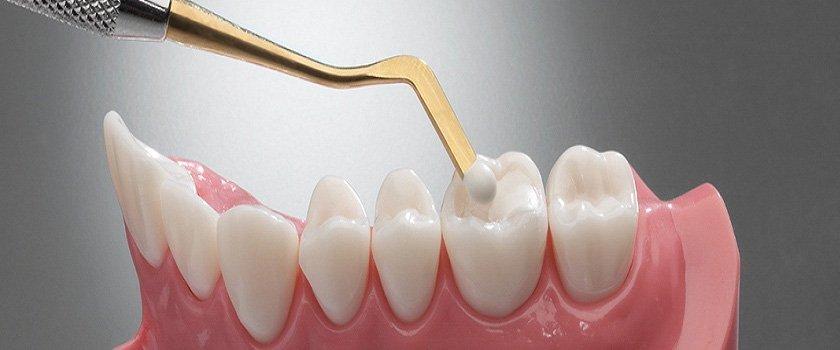 dental fillings New Hamburg Dental Group
