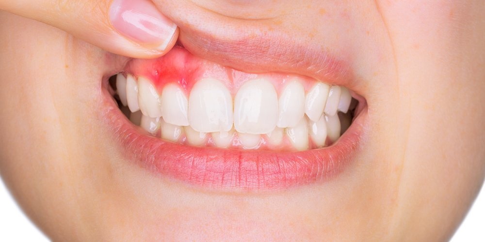 whitening New Hamburg Dental Group